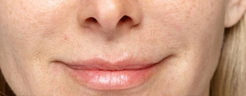 Lip Injections after procedure