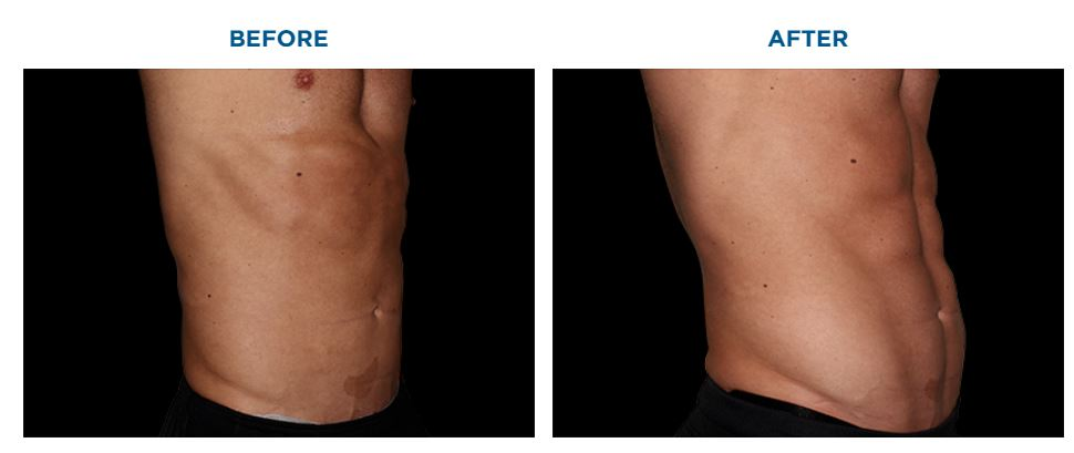 EMSCULPT BEFORE AND AFTER ABDOMEN