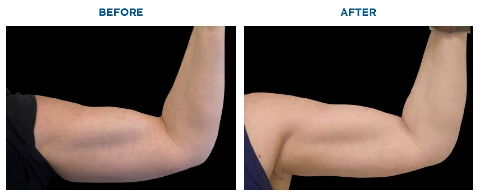 EMSCULPT BEFORE AND AFTER BICEPS