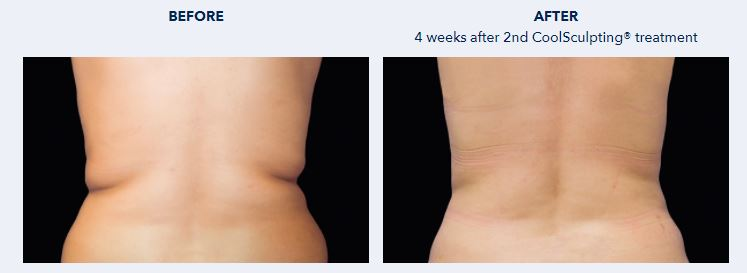 Coolsculpting Love Handles Before and after - Dr NIRDOSH