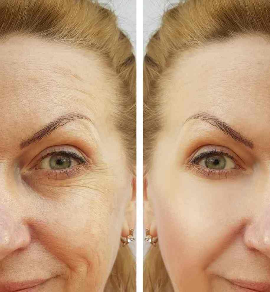 Botox Results Before and After - Dr Nirdosh Clinic_