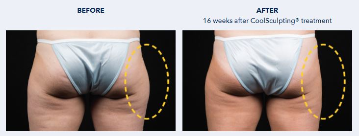 Coolsculpting Before and After Hips Butt - Dr NIRDOSH