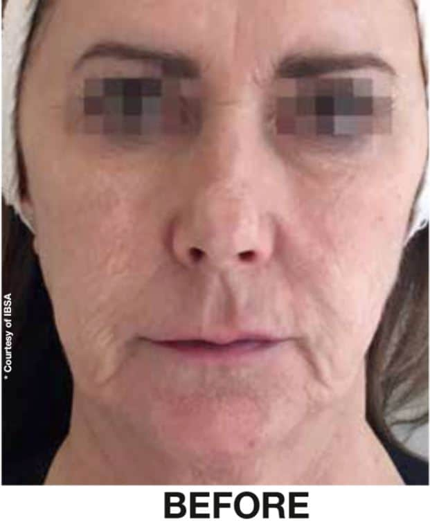 PROFHILO BEFORE AND AFTER - DR NIRDOSH CLINIC