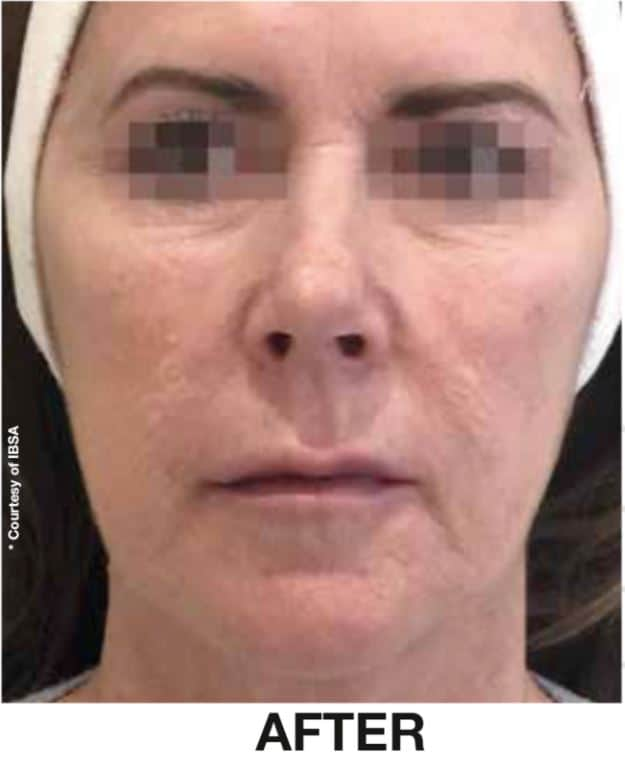 PROFHILO BEFORE AND AFTER RESULTS- DR NIRDOSH CLINIC