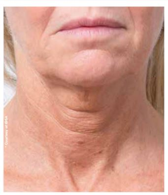 PROFHILO NECK BEFORE AND AFTER - DR NIRDOSH CLINIC
