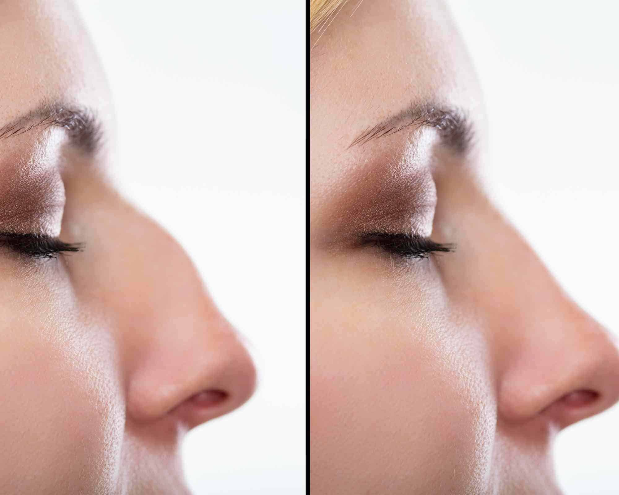 NON SURGCIAL RHINOPLASTY RESULTS