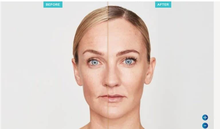Before and After Restylane | Dr Nirdosh Clinic