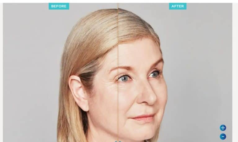 Results Restylane Injections